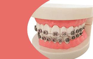 علاج بروز الاسنان الامامية بدون