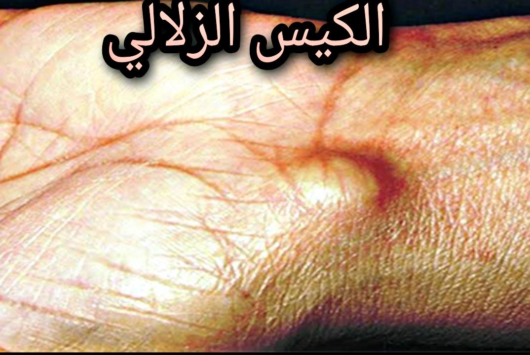 الكيس الزلالي  وطرق علاجه ~ Synovial cyst and methods of treatment