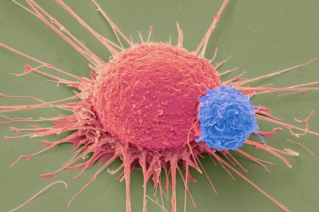 «CRISPR» تنال الضّوء الأخضر لتُستخدم في التّجارُب العلاجيّة بالولايات المُتّحدة