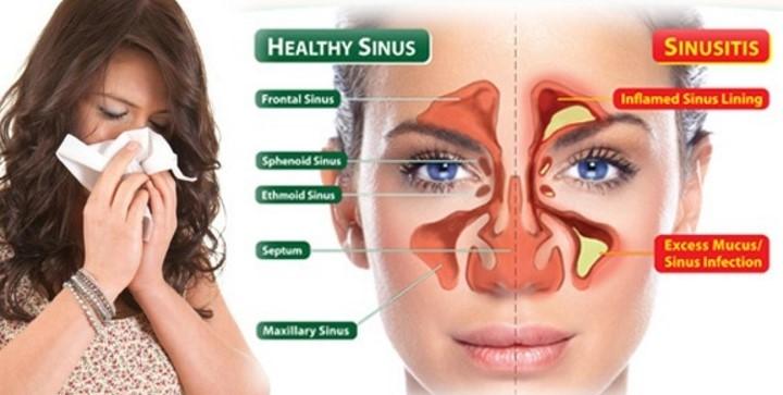 Testimoni Legres Herbal Sinusitis