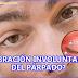 EL TIC NERVIOSO DEL MOVIMIENTO DE PARPADOS