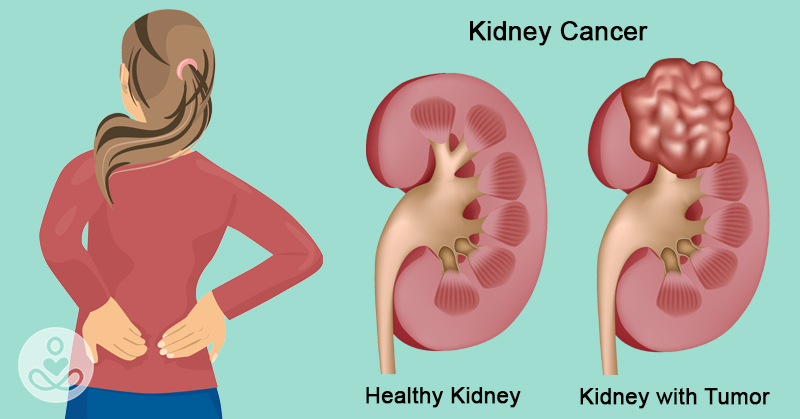 Kidney Cancer Well Explained 2020 Updated