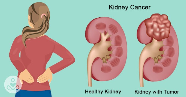 Kidney cancer well explained (2020 updated)
