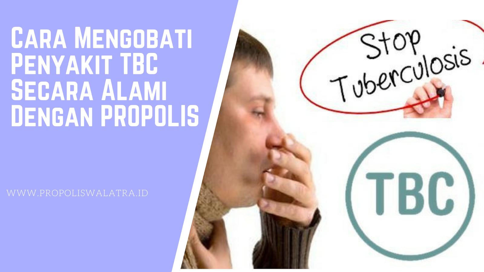 Cara Mengobati Penyakit TBC Secara Alami Dengan PROPOLIS