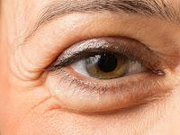 'Membuang' Kantung Mata Menurut dr. Boy Abidin, SpOG
