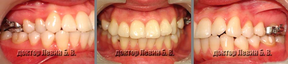 Три фото прикуса пациента до лечения.  Вид фронта, справа и  слева.