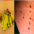Get Rid Of Your Moles, Warts, Blackheads, Skin Tags and Age Spots Using Natural Ingredients