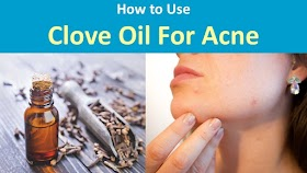 How to Use Clove Oil for Acne ?