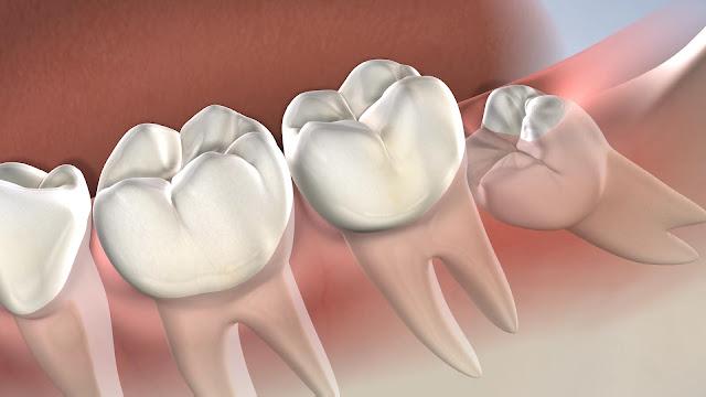 yirmilik diş ağrısına ne iyi gelir