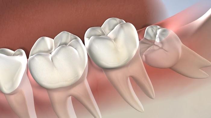 Yirmilik Diş Ağrısı Nasıl Geçer?