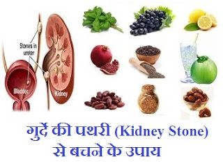 ayurvedic-natural-remedy-kidney-stone-prevention-hindi