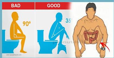 كرسي المرحاض أو وضعية القرفصاء