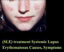 SLE Systemic Lupus Erythematosus (Lupus) treatment Causes, Symptoms