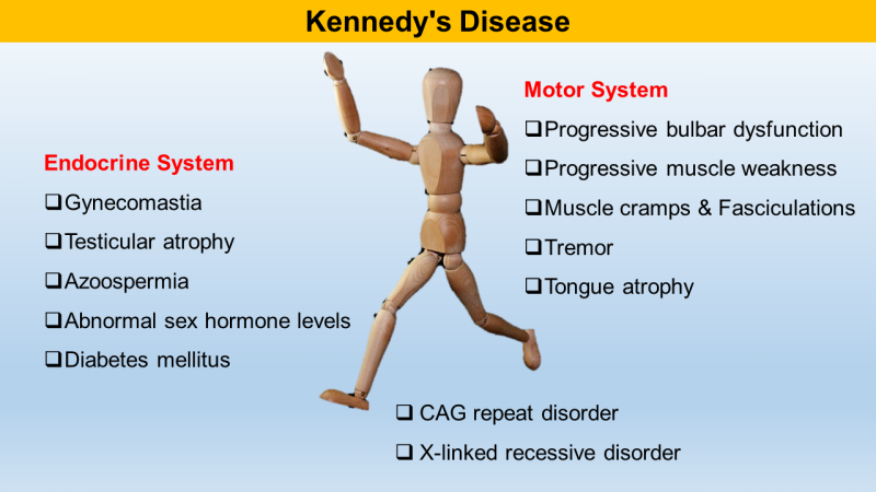 Kennedy Syndrome