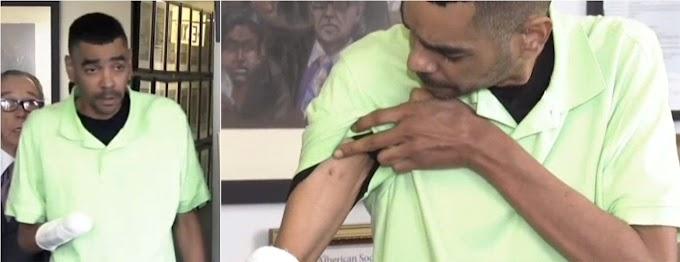 Dominicano que llegó con preinfarto a hospital de Queens y salió sin una mano demanda por  US$100 millones
