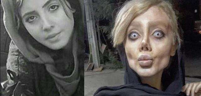Δείτε πως έγινε 19χρονη Ιρανή που ήθελε να μοιάσει με την Αντζελίνα Τζολί