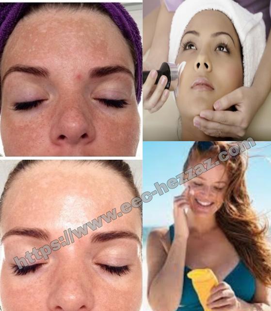 3 traitements pour enlever les taches de pigmentation