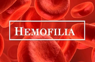http://www.pusatmedik.org/2017/07/hemofilia-definisi-penyebab-dan-pengobatan-serta-tanda-gejala-penyakit-hemofilia-menurut-ilmu-kedokteran.html