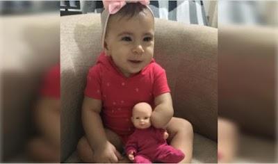 Pais cortam a mão da boneca para ficar igual a filha e se emocionam: 'Ela não é diferente'