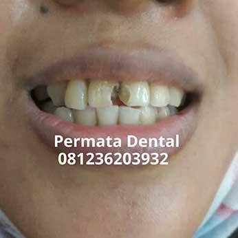 Ahli Gigi Palsu Banyuwangi Cara Memperbaiki Gigi Berlubang Di Gigi