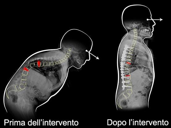Cifosi di cento gradi corretta grazie alla rimozione di due vertebre toraciche non contigue: primo intervento al Rizzoli