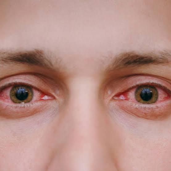 Bahaya Pengunaan Smartphone Bagi Mata