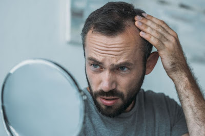 Methods of treatment of severe hair loss
