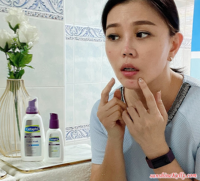 Review, My Maskne Skincare Journey,  Cetaphil PRO Acne Prone, Best Acne Skincare, Cetaphil, Maskne, Skincare Journey, Maskne Rescue, Beauty