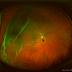 Pengalaman Operasi Ablasio Retina...Perjuangan itu Dimulai...Part 1...Saat Mata Tak Bisa Lagi Melihat