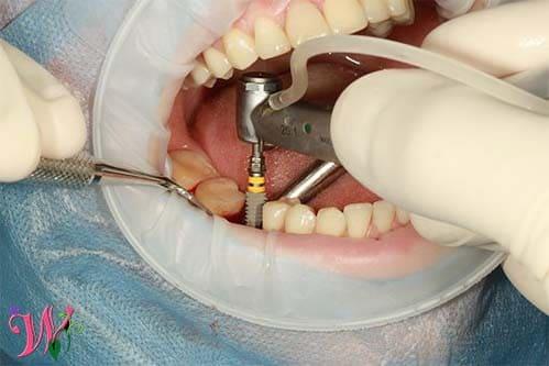 زراعة الاسنان|كيف تعرف انك مرشح لها ايجابياتها وسلبياتها