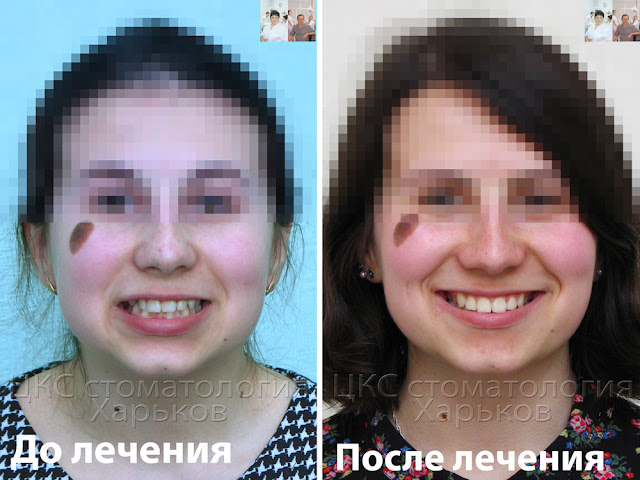 Улыбка до и после лечения металлическими брекетами