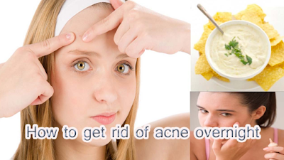 how to get rid of acne,how to get clear skin,how to get rid of pimples,how i control my acne,how to prevent acne,how to get rid of acne fast,how to cure acne,how to stop acne,