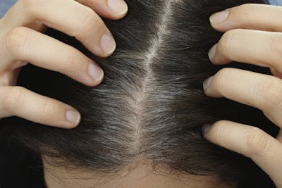 6 Bienfaits de l'acide folique pour de beaux cheveux sains