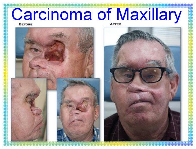 Carcinoma of Maxillary