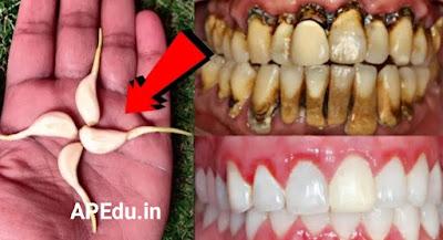 Health Tips White Teeth Home Remedy