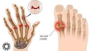Symptoms of Uric Acid in Hindi.