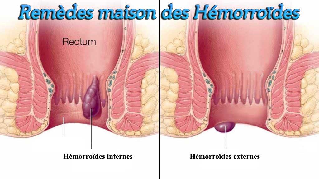 Remèdes maison des Hémorroïdes