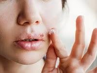 5 Cara Mengobati Herpes Supaya Tidak Berbekas