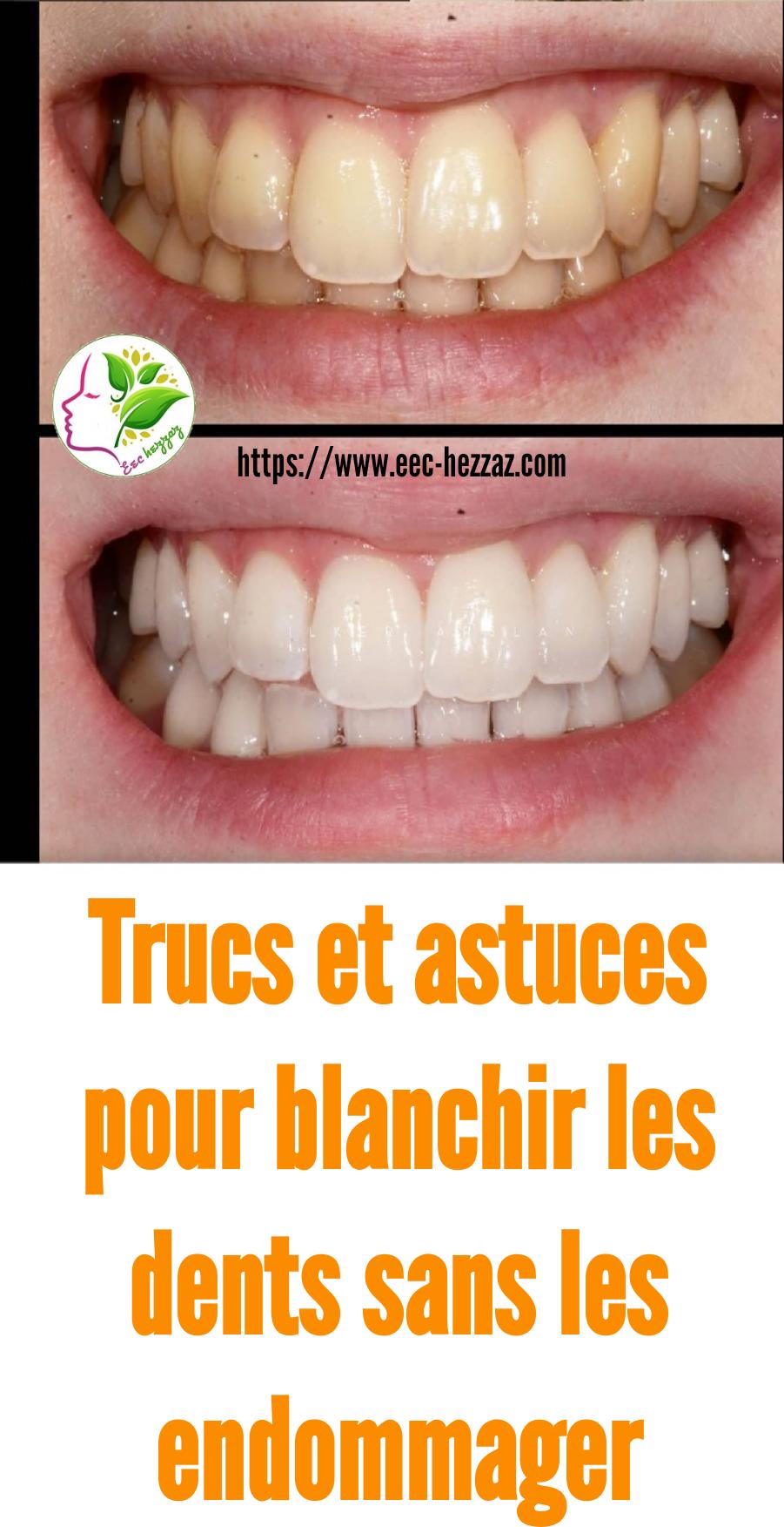Trucs et astuces pour blanchir les dents sans les endommager