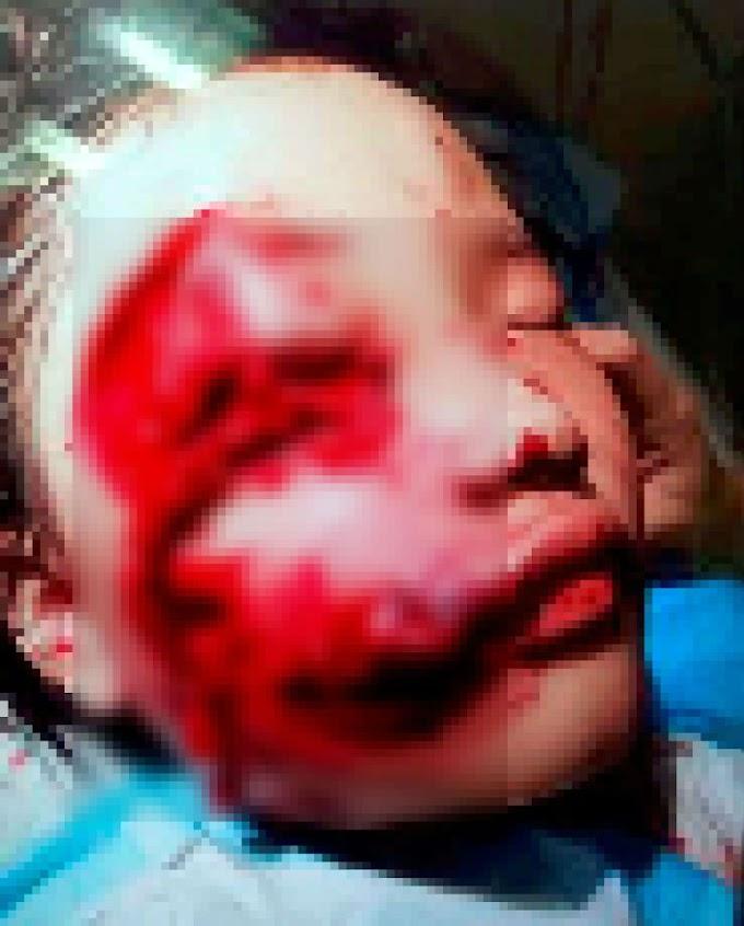 Pitbull Dog Serang Anak Jiran 11 Tahun