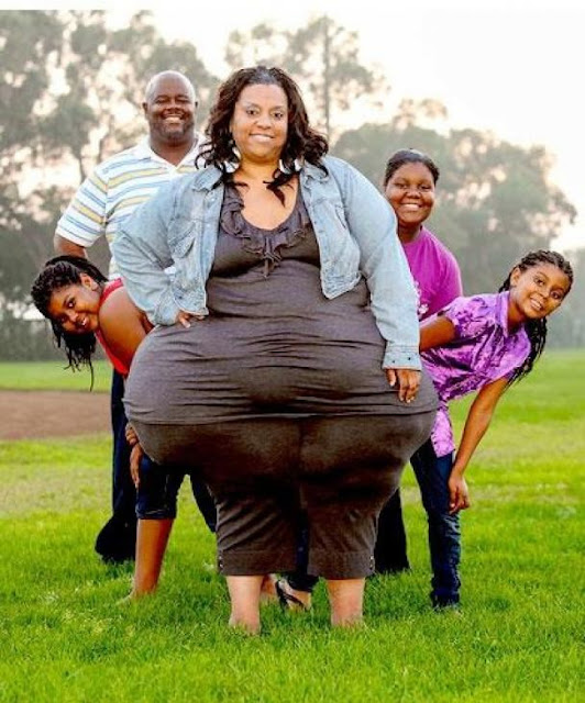 World Record for World's Largest Hips