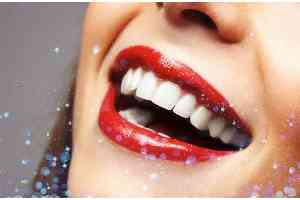 Ways to Keep Teeth Good   Treatment to prevent tooth decay