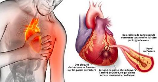 80% des crises cardiaques pourraient être évitées si tout le monde faisait ceci