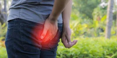 3 Cara Alami Mengobati Sakit Ambeien atau Wasir Dengan Buah Sirsak dan Gula Aren