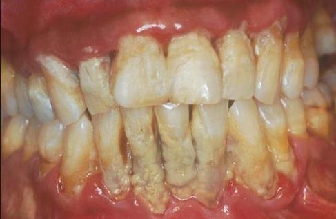 Cara Memutihkan Gigi Berkarat Cara Memutihkan Gigi
