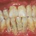 Cara Memutihkan Gigi Berkarat