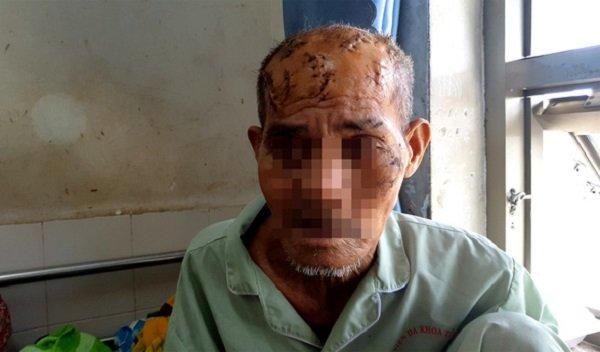 Cụ Tám với 17 vết thương trên mặt và đầu do cháu nội gây ra