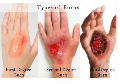 Terkena air panas jangan amik ringan