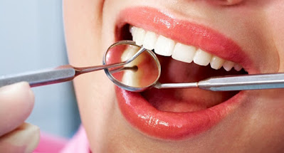 Two cavities triple the risk of having peri-implantitis