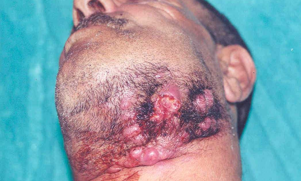 Salivary Gland Infection   saliva